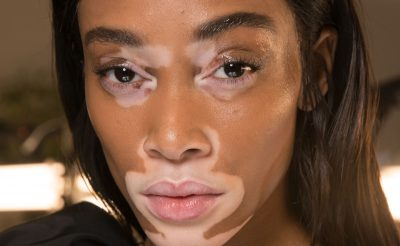 Winnie Harlow's Most Memorable Runway Moments
